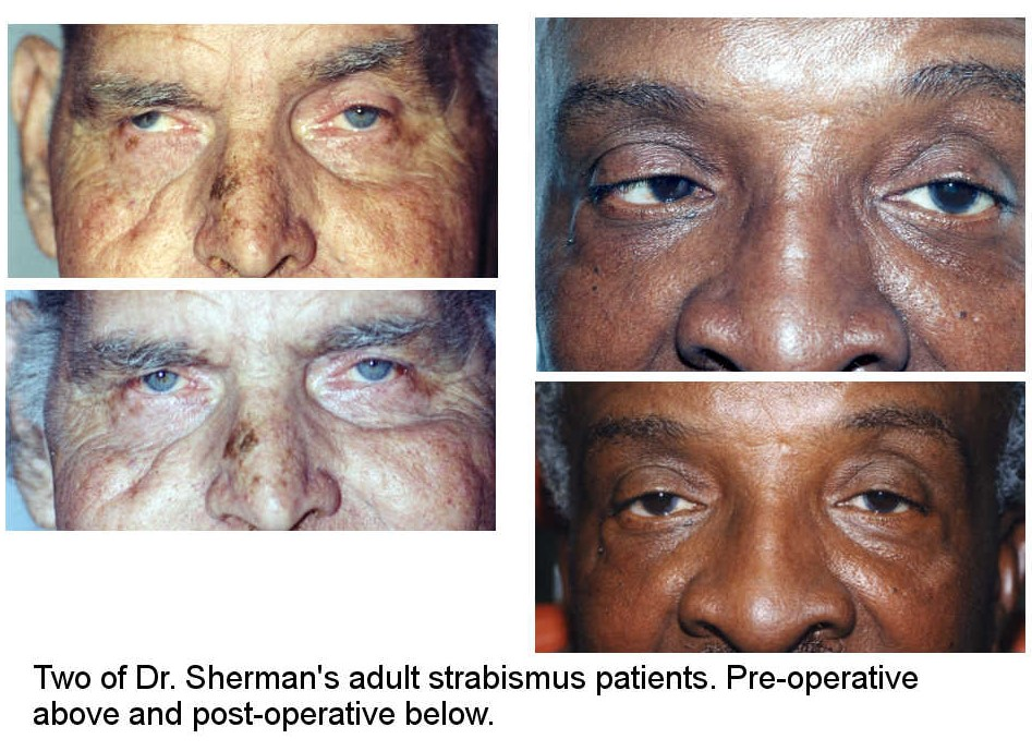 Surgical treatment strabismus in adults